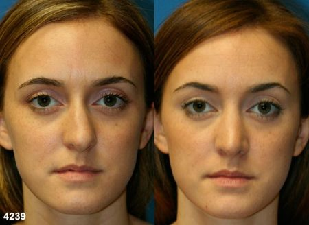 patient-11757-rhinoplasty-nosejob-before-after-3