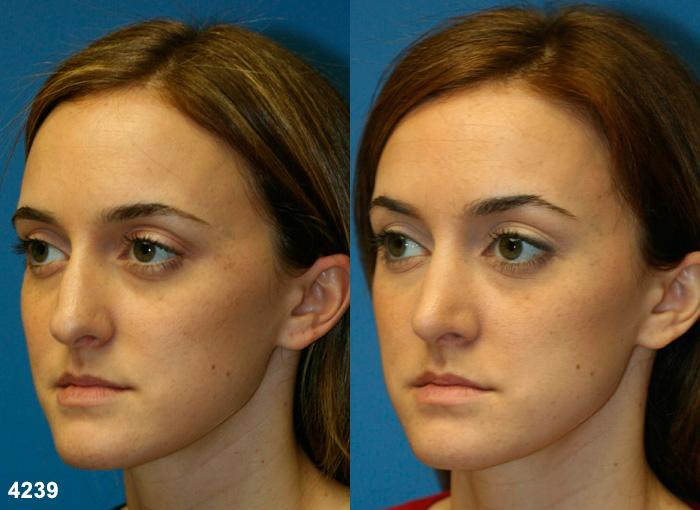 patient-11757-rhinoplasty-nosejob-before-after-4