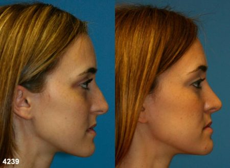 patient-11757-rhinoplasty-nosejob-before-after-5