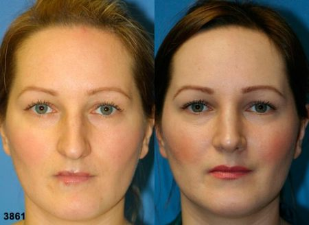 patient-11771-rhinoplasty-nosejob-before-after-2
