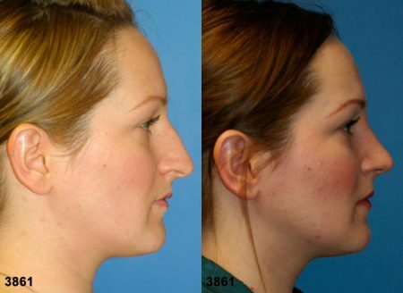 patient-11771-rhinoplasty-nosejob-before-after-3