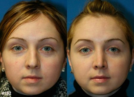 patient-11776-rhinoplasty-nosejob-before-after-3