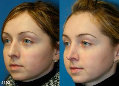 patient-11776-rhinoplasty-nosejob-before-after-4