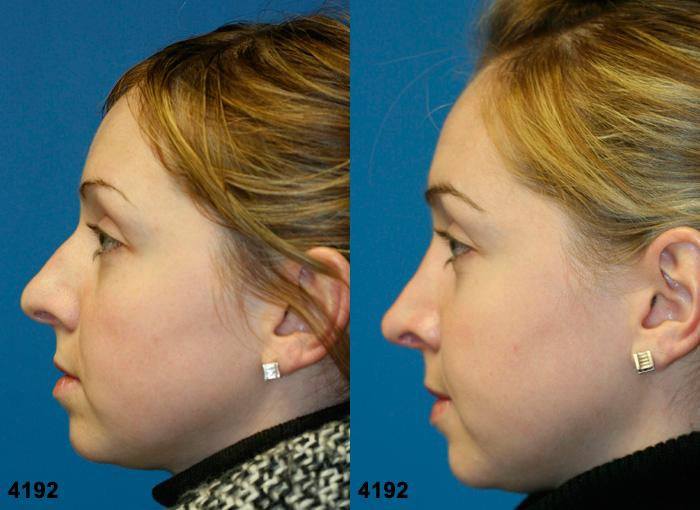 patient-11776-rhinoplasty-nosejob-before-after-5