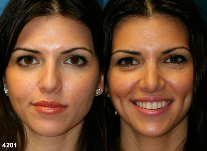 patient-11783-rhinoplasty-nosejob-before-after-3