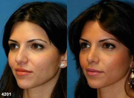 patient-11783-rhinoplasty-nosejob-before-after-4