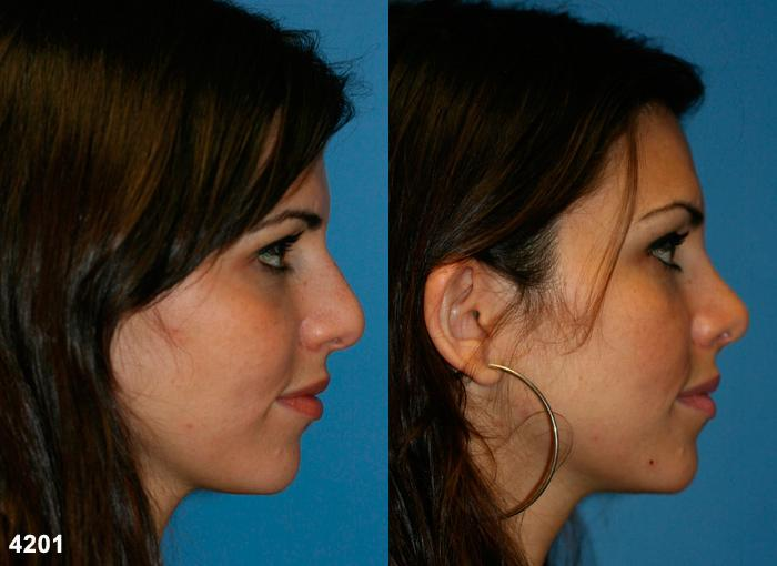 patient-11783-rhinoplasty-nosejob-before-after-5