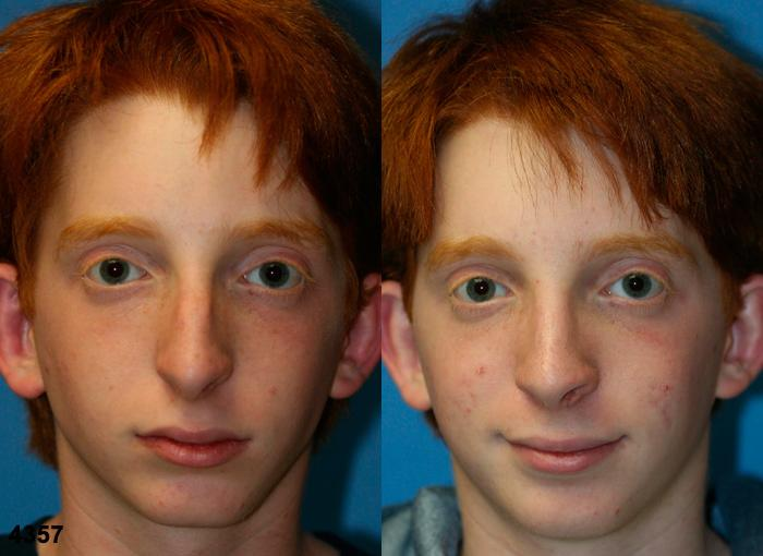 patient-11790-rhinoplasty-nosejob-before-after-3
