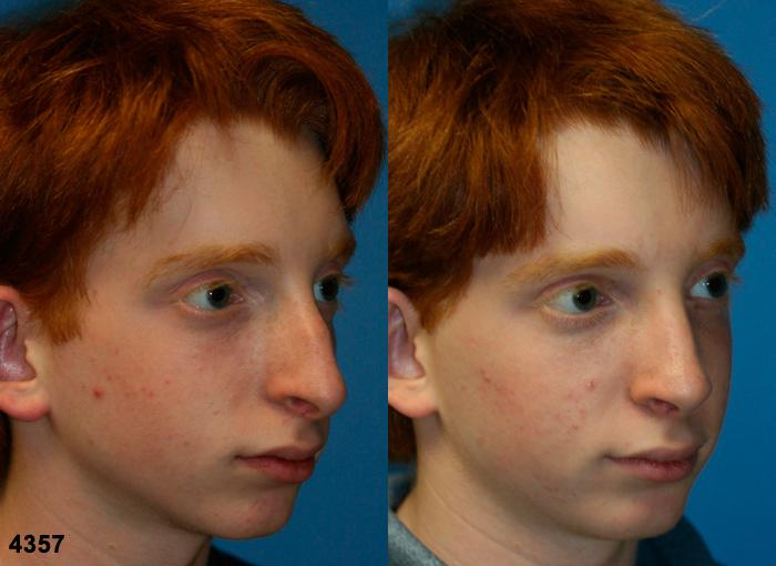 patient-11790-rhinoplasty-nosejob-before-after-4