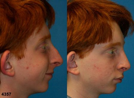patient-11790-rhinoplasty-nosejob-before-after-5