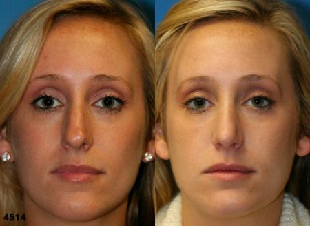 patient-11797-rhinoplasty-nosejob-before-after-3