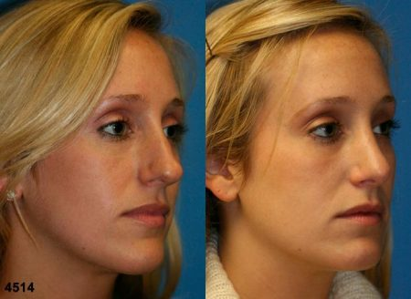 patient-11797-rhinoplasty-nosejob-before-after-4