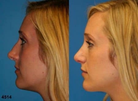 patient-11797-rhinoplasty-nosejob-before-after-5