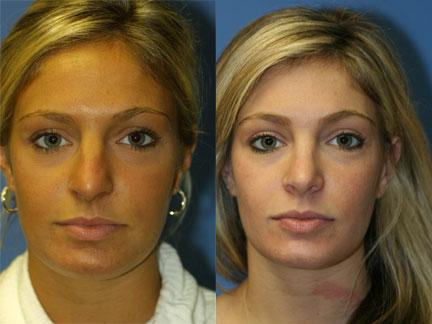patient-11804-rhinoplasty-nosejob-before-after-4