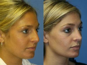 Rhinoplasty Patient Before and After New York