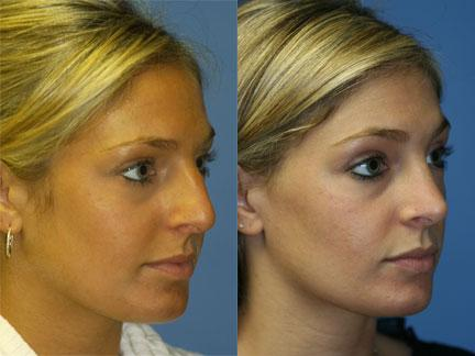 patient-11804-rhinoplasty-nosejob-before-after-5