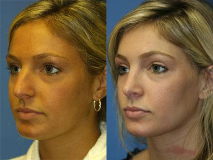 patient-11804-rhinoplasty-nosejob-before-after-6