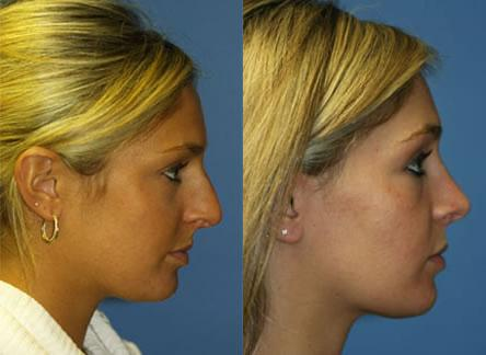 patient-11804-rhinoplasty-nosejob-before-after-7