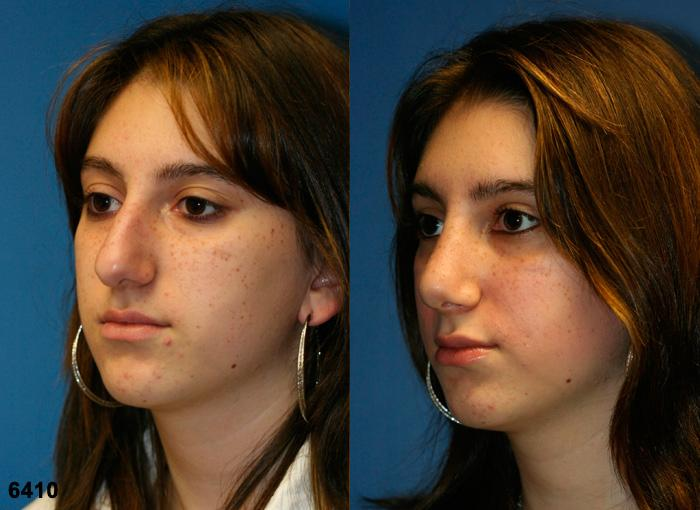 patient-11813-rhinoplasty-nosejob-before-after-2