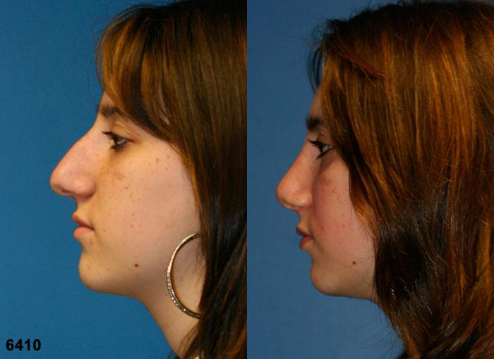 patient-11813-rhinoplasty-nosejob-before-after-3