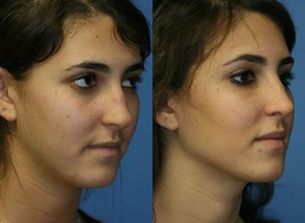patient-11818-rhinoplasty-nosejob-before-after-3