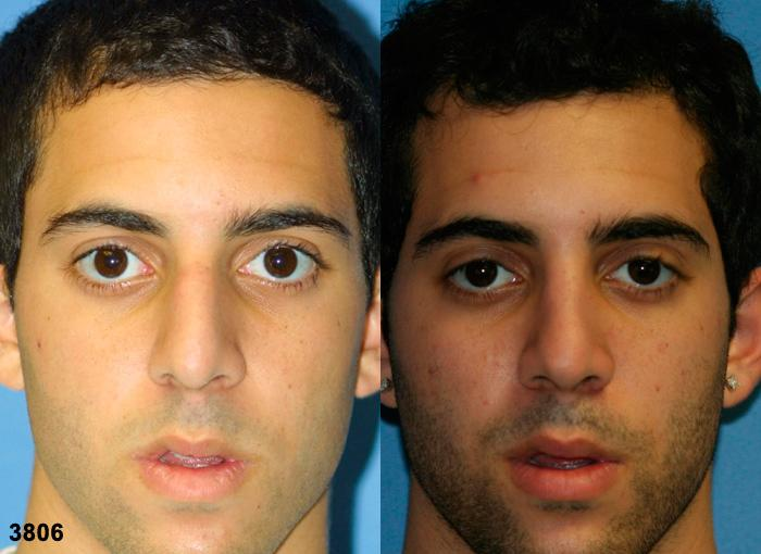 patient-11823-rhinoplasty-nosejob-before-after-2