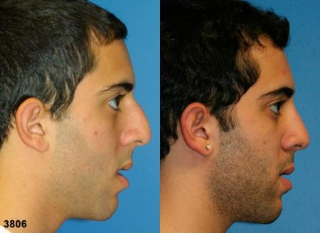 patient-11823-rhinoplasty-nosejob-before-after-3