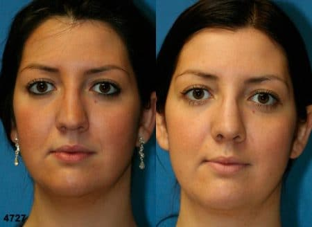 patient-11828-rhinoplasty-nosejob-before-after-3
