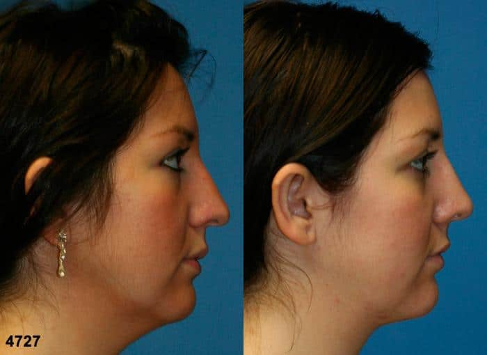 patient-11828-rhinoplasty-nosejob-before-after-5