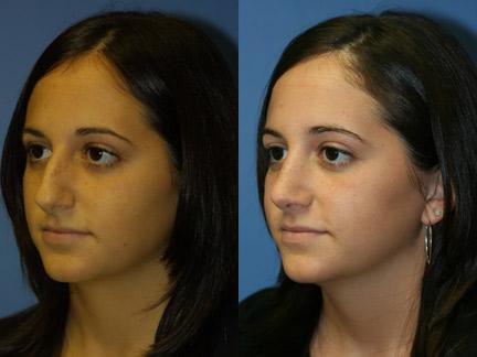patient-11835-rhinoplasty-nosejob-before-after-2