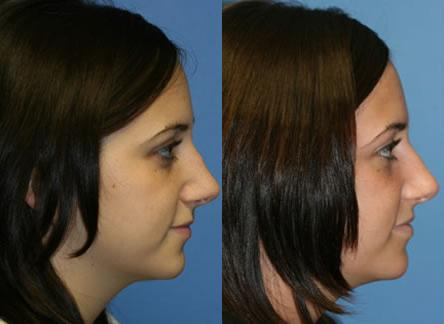patient-11835-rhinoplasty-nosejob-before-after-3
