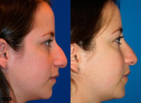 patient-11840-rhinoplasty-nosejob-before-after-2