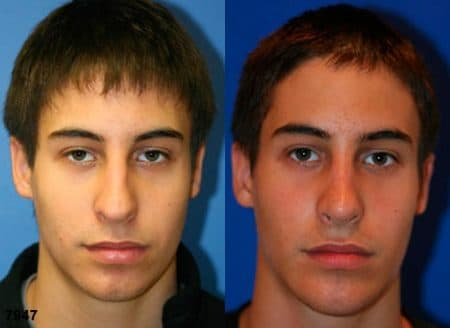 patient-11847-rhinoplasty-nosejob-before-after-4