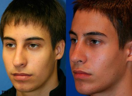 patient-11847-rhinoplasty-nosejob-before-after-5
