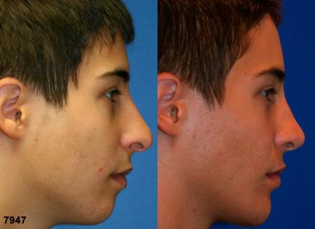 patient-11847-rhinoplasty-nosejob-before-after-6