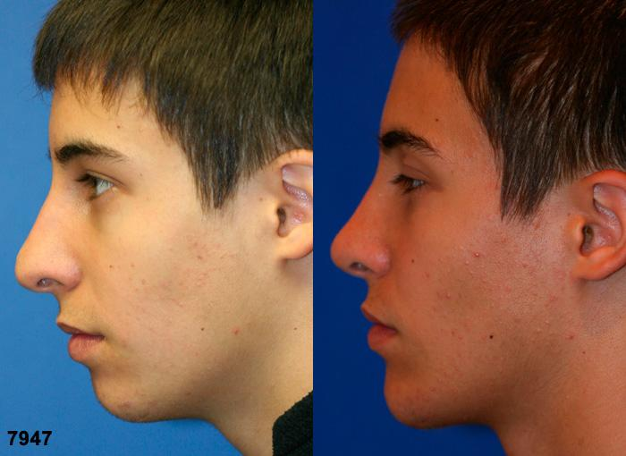patient-11847-rhinoplasty-nosejob-before-after-7