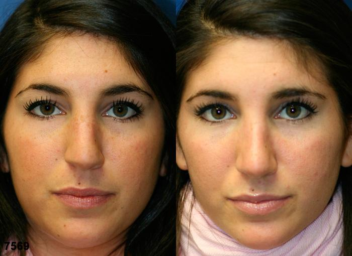 patient-11856-rhinoplasty-nosejob-before-after-3
