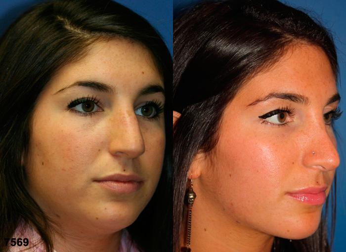 patient-11856-rhinoplasty-nosejob-before-after-4
