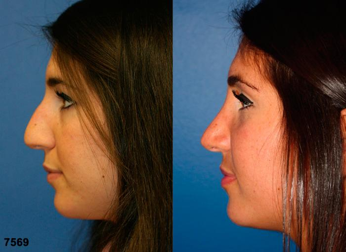 patient-11856-rhinoplasty-nosejob-before-after-5