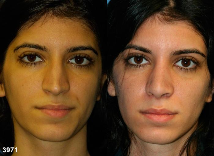 patient-11863-rhinoplasty-nosejob-before-after-3