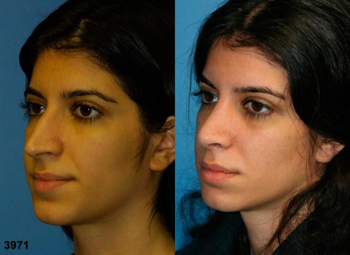 patient-11863-rhinoplasty-nosejob-before-after-4