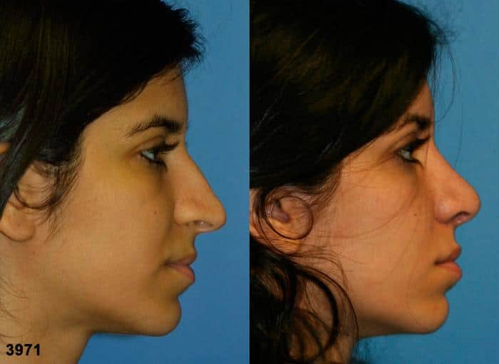 patient-11863-rhinoplasty-nosejob-before-after-5