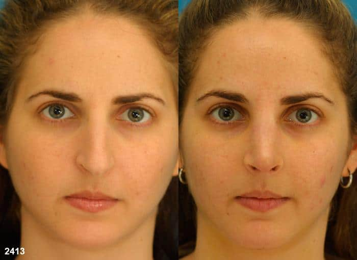 patient-11870-rhinoplasty-nosejob-before-after-3