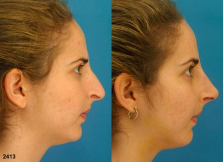 patient-11870-rhinoplasty-nosejob-before-after-4