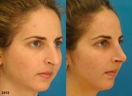 patient-11870-rhinoplasty-nosejob-before-after-5
