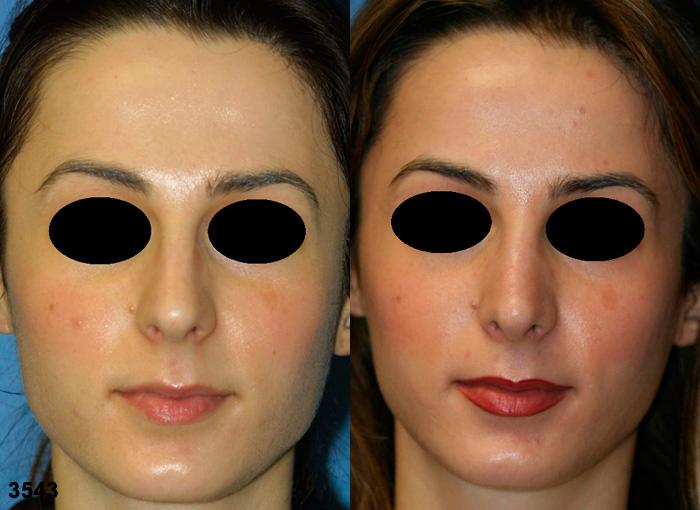 patient-11877-rhinoplasty-nosejob-before-after-3