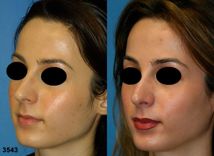 patient-11877-rhinoplasty-nosejob-before-after-4