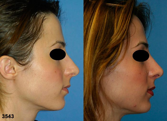 patient-11877-rhinoplasty-nosejob-before-after-5