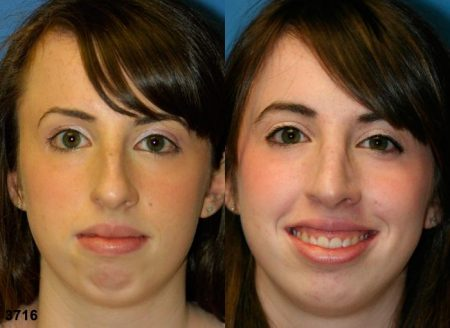 patient-11884-rhinoplasty-nosejob-before-after-3