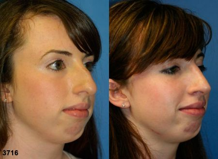 patient-11884-rhinoplasty-nosejob-before-after-4